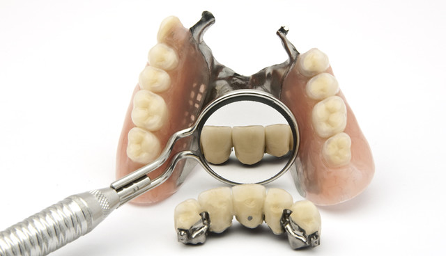 If you are in need of some type of repair to you dentures we can do this same day!! The earlier you get your denture to us, the earlier we...